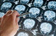 دانشمندان ارتباط سن و سرطان را کشف کردند