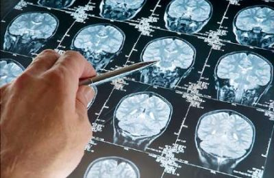 سرطان زایی امواج موبایل سرطان مغز