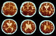 شیوه ی جدید تشخیص بیماری آلزایمر با آزمایش خون